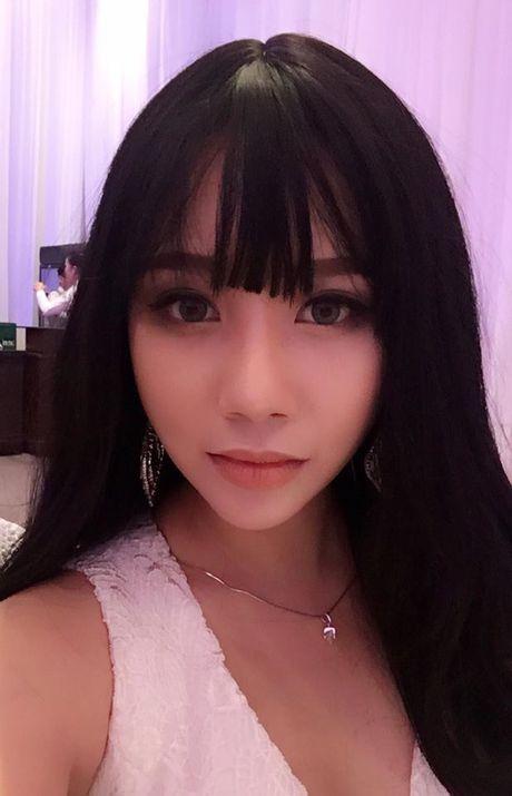 Phuong Vu: 'Bi Mr Dam che xau nhung toi chua dam tham my vi khong co dieu kien' - Anh 3