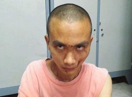 Truy sat o chua Buu Quang: Hung thu dung chat kich thich? - Anh 1