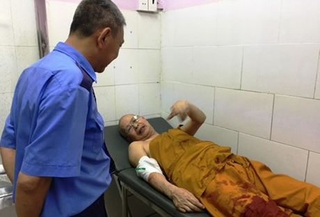 Truy sat o chua Buu Quang: Hung thu dung chat kich thich? - Anh 2