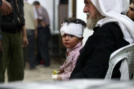 Syria: Thi tran Douma co the tro thanh lo lua Aleppo thu 2 - Anh 1