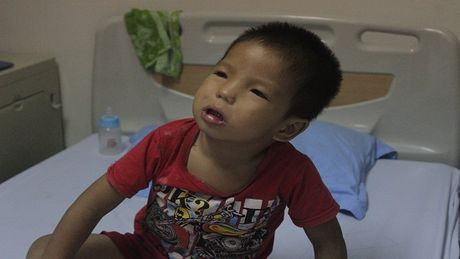 """Xot thuong be trai 3 tuoi bi diec bam sinh, mac benh """"ua chay mau"""" - Anh 2"""