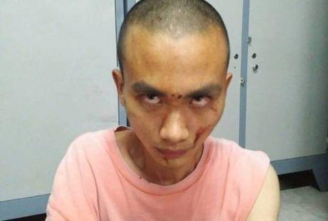 Lam ro dong co vu tan cong bang dao o chua khien 4 nguoi thuong vong - Anh 3