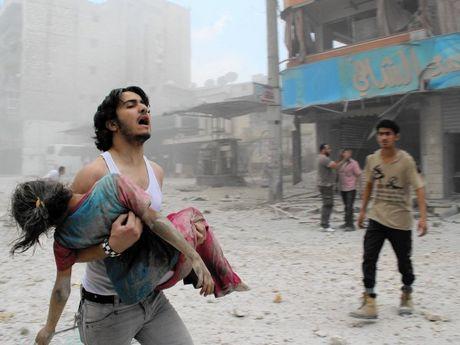 Syria to My va dong minh khong kich Aleppo gay ra nhieu thuong vong - Anh 1
