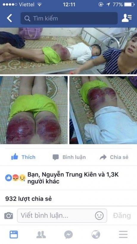 Thai Nguyen: Bo danh con gan chet gay day song cong dong mang - Anh 1