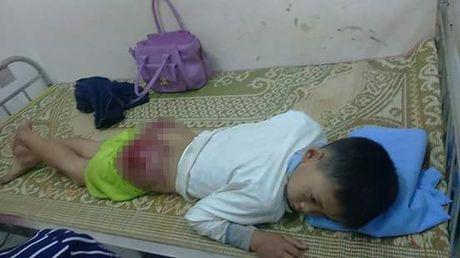 Thai Nguyen: Phan no be trai bi bo de danh den bam dap mong, rom mau - Anh 2