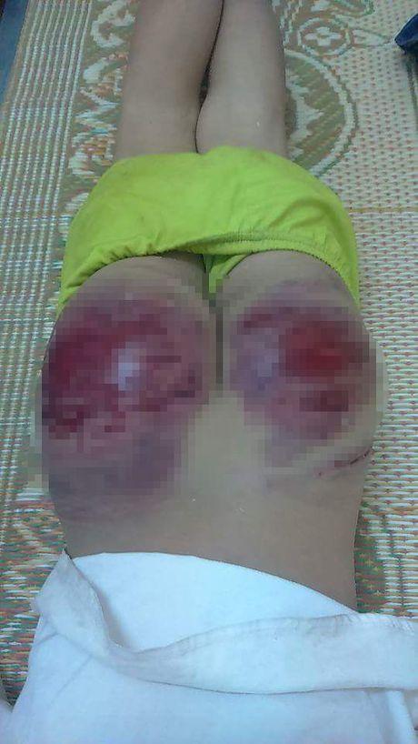 Thai Nguyen: Phan no be trai bi bo de danh den bam dap mong, rom mau - Anh 3