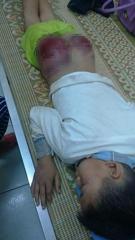 Thai Nguyen: Phan no be trai bi bo de danh den bam dap mong, rom mau - Anh 4
