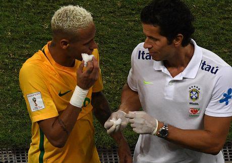 Mau chay dam dia tren guong mat Neymar - Anh 10
