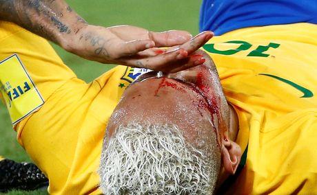 Mau chay dam dia tren guong mat Neymar - Anh 6