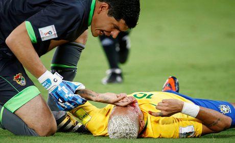 Mau chay dam dia tren guong mat Neymar - Anh 7