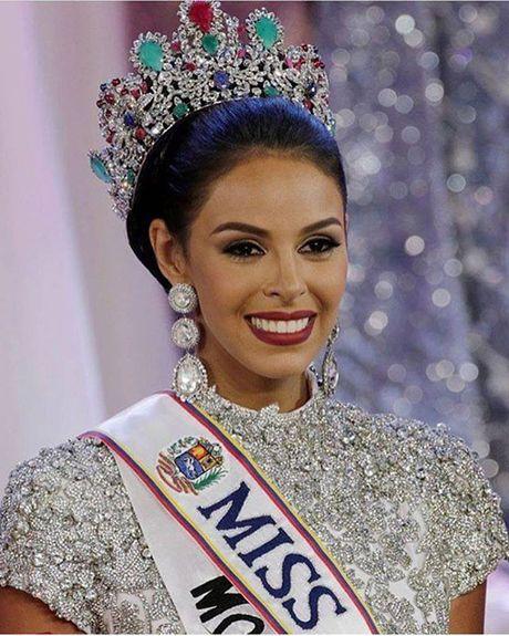 Nhan sac Hoa hau Venezuela 2016 - Anh 2