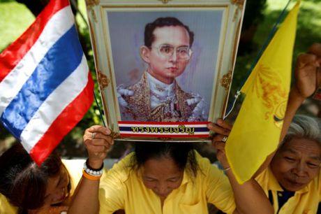 Suc khoe quoc vuong Thai Lan bat on sau loc mau - Anh 1