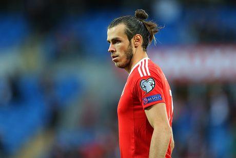 Bale khac la khi lan dau xoa toc - Anh 4