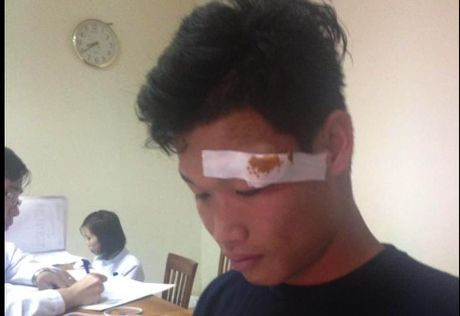 Dong Trieu rach mi mat, bo do tran dau gap Quang Nam - Anh 1