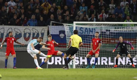 Joe Hart nen dau cuu tuyen Anh khoi thua Slovenia - Anh 3