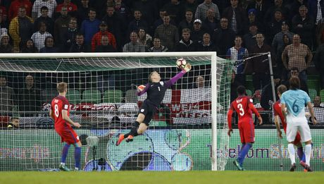 Joe Hart nen dau cuu tuyen Anh khoi thua Slovenia - Anh 5