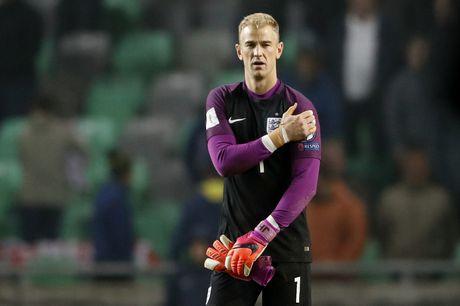 Joe Hart nen dau cuu tuyen Anh khoi thua Slovenia - Anh 6