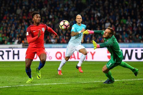 Joe Hart nen dau cuu tuyen Anh khoi thua Slovenia - Anh 7