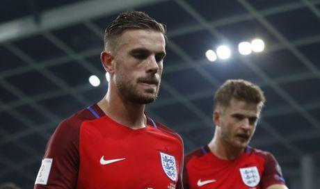 Joe Hart nen dau cuu tuyen Anh khoi thua Slovenia - Anh 9