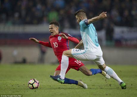 Cham diem Slovenia 0-0 Anh: Joe Hart giai cuu Tam Su o Ljubljana - Anh 8