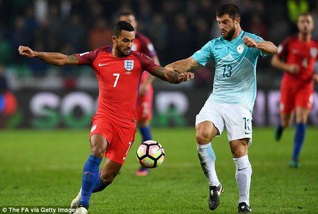Cham diem Slovenia 0-0 Anh: Joe Hart giai cuu Tam Su o Ljubljana - Anh 9