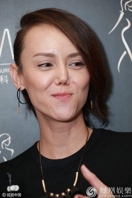 Hoa hau dep nhat ATV 'xau dien' vi tham my mui hong - Anh 4