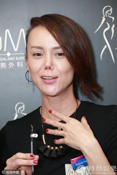 Hoa hau dep nhat ATV 'xau dien' vi tham my mui hong - Anh 6