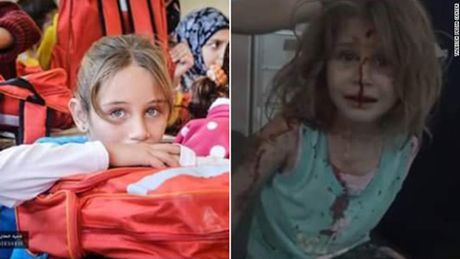 Tieng goi 'Bo oi' xe long cua be gai Syria voi khuon mat day mau sau vu no bom - Anh 2