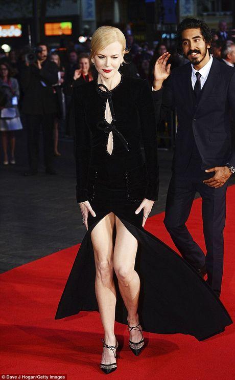 Nicole Kidman boi roi vi dien vay xe sau - Anh 1