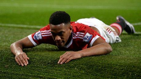 Anthony Martial sa sut khong phanh o Man United. Vi bi vo bo? - Anh 1