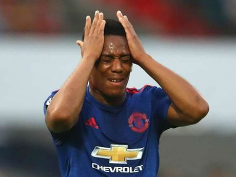 Anthony Martial sa sut khong phanh o Man United. Vi bi vo bo? - Anh 2