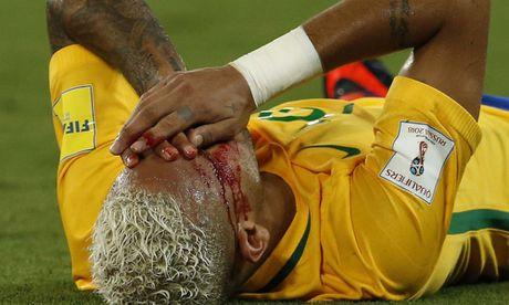 Neymar: 'Se tiep tuc pho dien, ghet cu danh cui cho' - Anh 1
