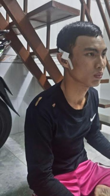 Dinh chi phuong doi truong ban nguoi - Anh 1