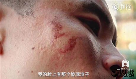 Ghi nhan truong hop iPhone 7 dau tien phat no khi dang su dung - Anh 2