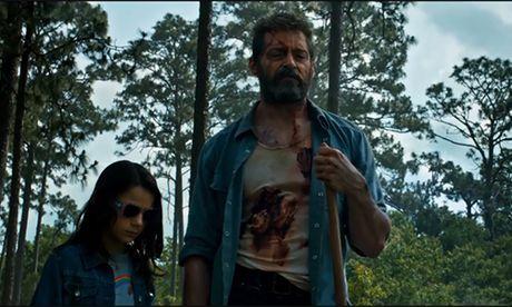 Hugh Jackman tai xuat an tuong trong trailer 'Logan: Nguoi Soi 3' - Anh 2