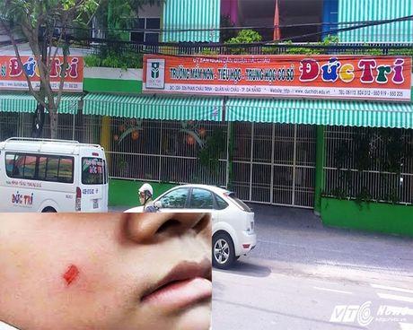 Thuong con nhu the bang muoi hai con - Anh 1