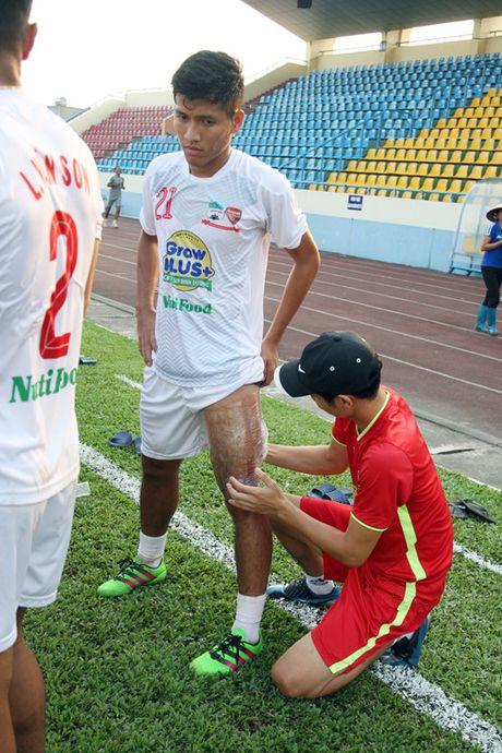 TRUC TIEP U.21 Than Quang Ninh 0-0 U.21 HAGL: Day song san Cam Pha - Anh 3
