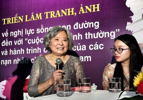 'Con duong khat vong' cua cac nan nhan chat doc da cam - Anh 7