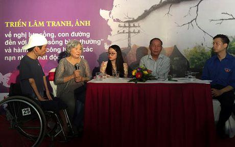 'Con duong khat vong' cua cac nan nhan chat doc da cam - Anh 8