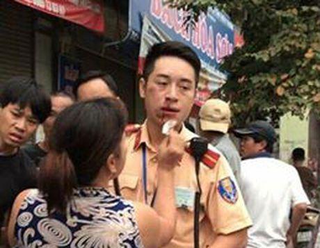 Khoi to doi tuong dam gay rang Canh sat giao thong - Anh 2