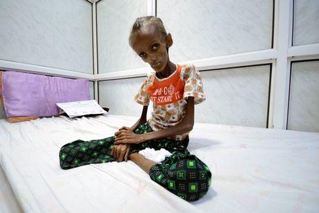 Am anh thieu nu Yemen 18 tuoi bi suy dinh duong nghiem trong - Anh 1