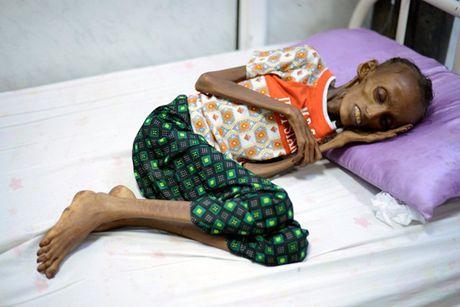 Am anh thieu nu Yemen 18 tuoi bi suy dinh duong nghiem trong - Anh 2