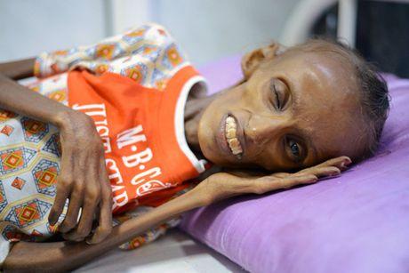 Am anh thieu nu Yemen 18 tuoi bi suy dinh duong nghiem trong - Anh 3