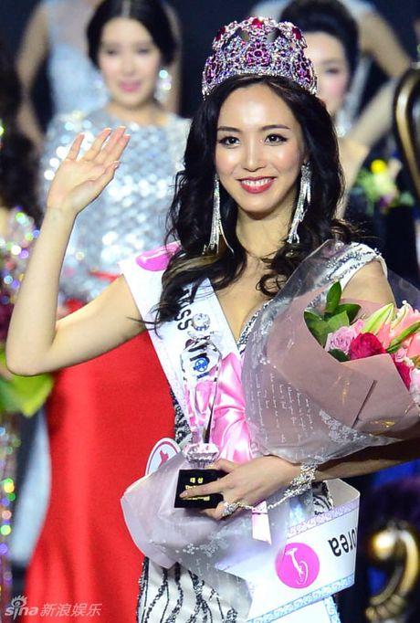 Top 5 hoa hau Han co 'trai cam' dot mat nhat Han Quoc - Anh 1