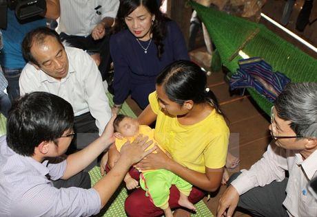 Bo Y te thong bao ve tre dau nho nghi do Zika dau tien tai Viet Nam - Anh 1