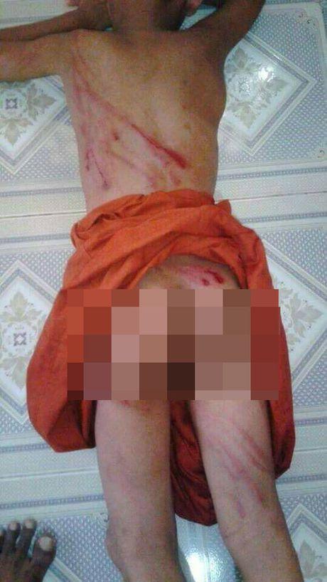 Thai Lan: Su tieu bi danh dap bang gay trong chua - Anh 1