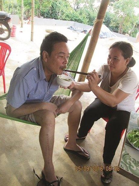 Dak Lak: Chua benh nan y bang thuoc gia truyen - Anh 4