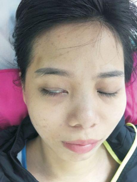 Mat nham khong kin trong liet day than kinh vii ngoai bien - Anh 1