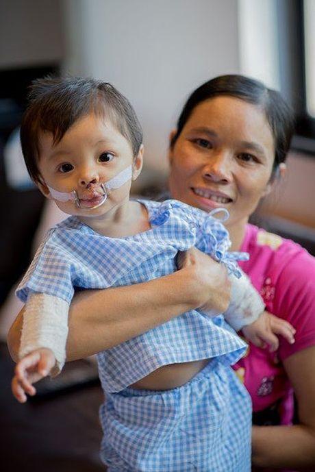 Tre Viet bi di tat tim bam sinh sang Thai phau thuat - Anh 1