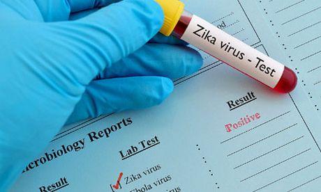 Da co 20 nguoi nhiem vi rut Zika tai TP Ho Chi Minh - Anh 1